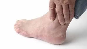 Nguyên nhân gây ra bệnh Gout