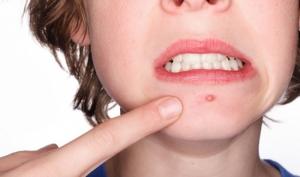 Đinh râu - nhọt độc và cách điều trị