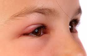 Mẹo điều trị mắt sưng đau hiệu quả với nguyên liệu đơn giản