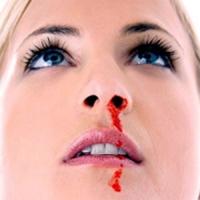 Ra máu cam (nục huyết) - nguyên nhân và cách xử trí