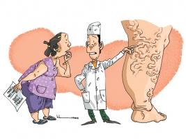 Phân biệt giữa bệnh viêm tắc tĩnh mạch chi dưới và suy giãn tĩnh mạch