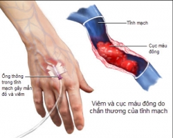 Triệu chứng bệnh viêm tắc tĩnh mạch