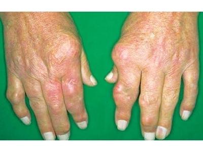 Đông y hỗ trợ điều trị hiệu quả và phòng tái phát bệnh viêm đa khớp dạng thấp